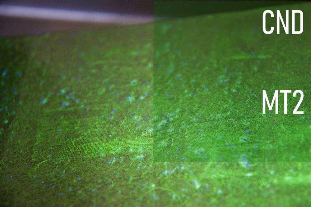 Cofrend – Magnétoscopie niveau 2